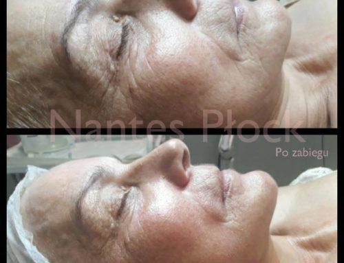Kobido – niechirurgiczny lifting twarzy